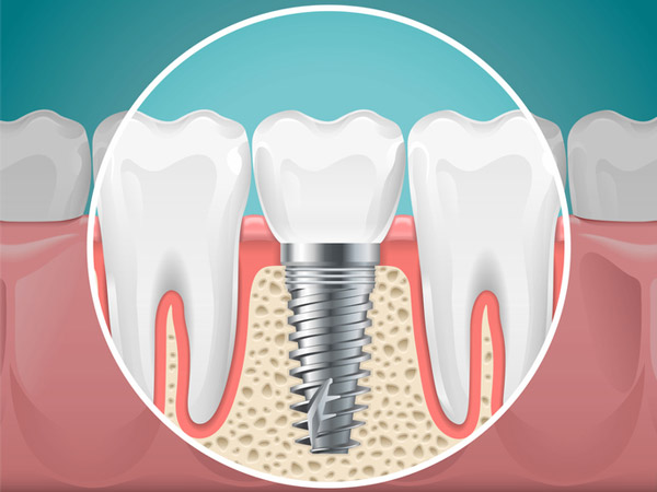 dental implants reviews in New Port Richey